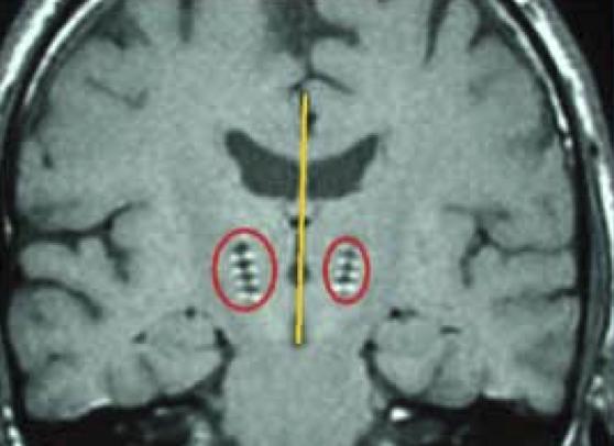 cerveau-image