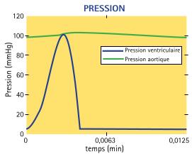 Pressions dans le ventricule gauche (VG) et le système artériel (SA) avec assistance ventriculaire.